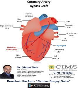 Coronary Artery Bypass Graft