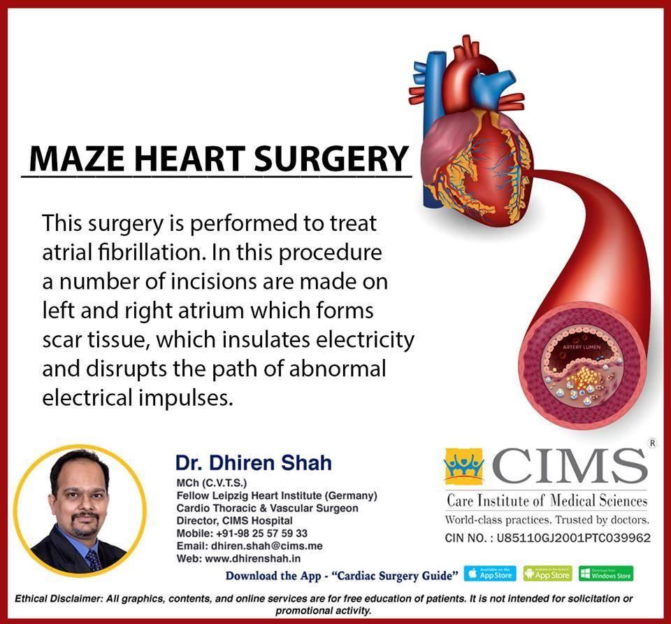 Maze Heart Surgery