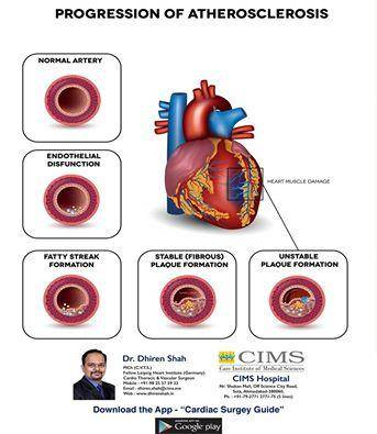 Prograssion Of Atherosclerosis