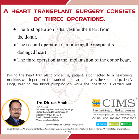 A heart transplant surgery consists of three operations