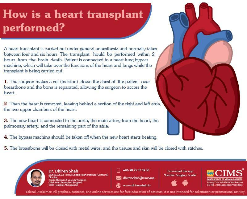 how is heart trasplant performed?