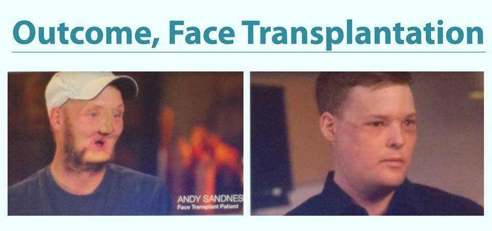 See the miracle of medical science and technology. This is a photo of a patient after face transplant. Everyone needs to have faith in medical science and doctors.
