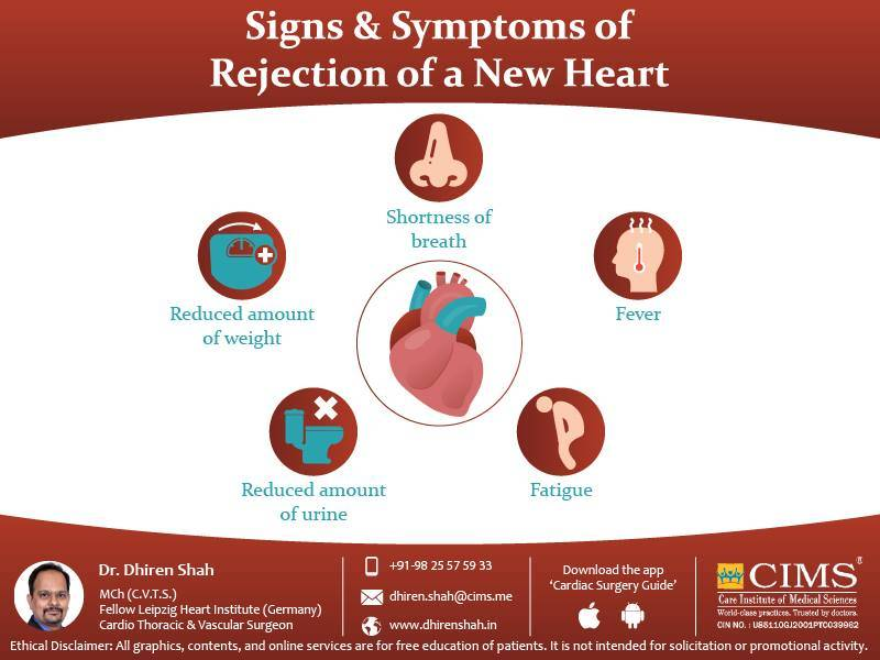 Signs & Symptoms of Rejection of New Heart
