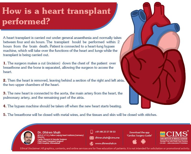 How Is a Heart Transplant Performed ?