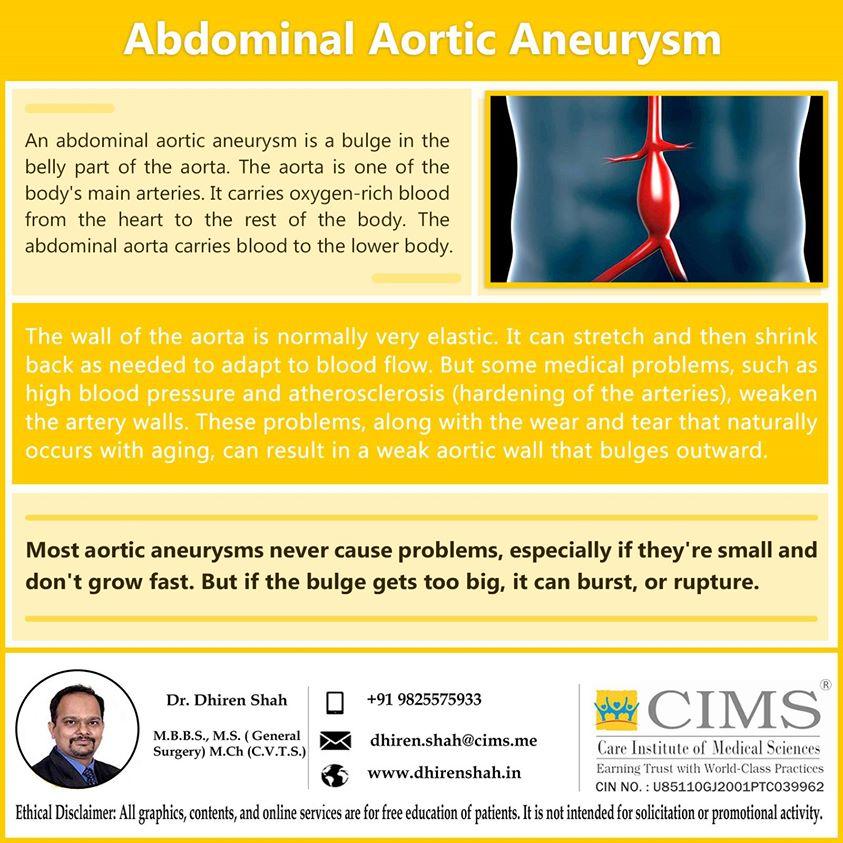 Abdominal aortic aneurysm.
