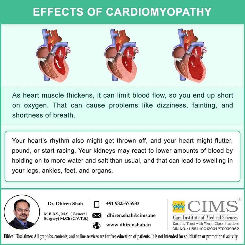 EFFECTS OF CARDIOMYOPATHY.