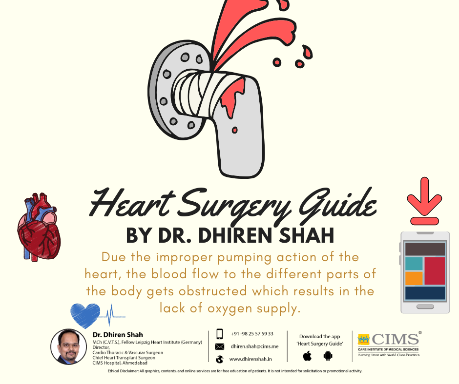 Heart Surgery Guide By Dr.Dhiren Shah